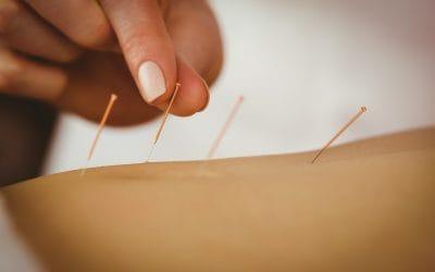 Voraussetzungen für die Akupunktur – Ausbildung: Das sollten Sie mitbringen