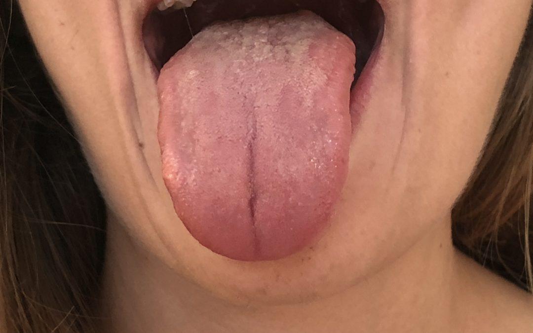 Beispielzunge für die Zungendiagnostik in der TCM